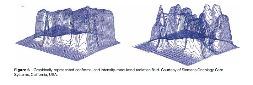 Radiation Therapy Research Paper